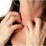 アトピーやアレルギーになぜ植物性ラクトバチルス乳酸菌は効果が高いの?
